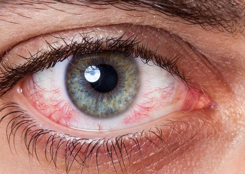 Best Eye Drops For Smoking Weed